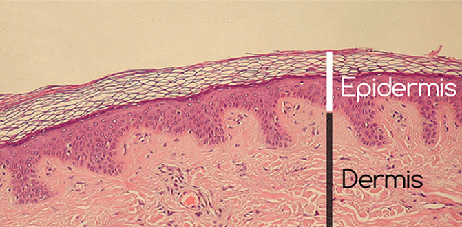 Changes that are produced in the Dermis-Epidermis interface 1